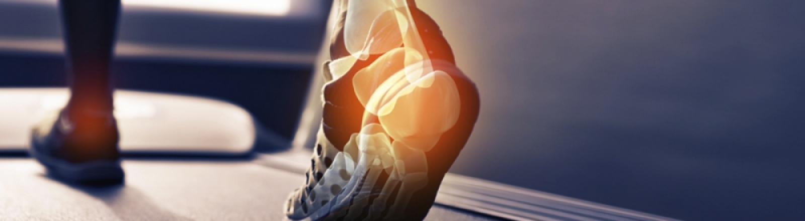 tendinitis aquilea o del tendon de aquiles
